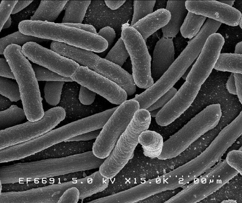 Bacteris resistents als antibiòtics: l'amenaça fantasma!