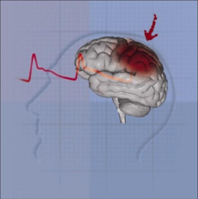 Accidents de trànsit i traumatismes cranials. Causes i conseqüències